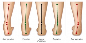 Effect of footwear modification on postural symmetry and body balance in leg length Discrepancy: A randomized controlled study